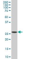 SPI1 Antibody | 2G1 gallery image 1