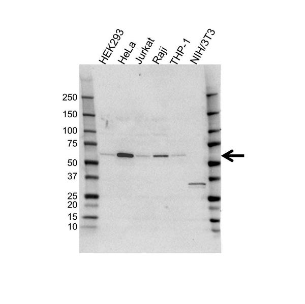 SQSTM1 Antibody (PrecisionAb<sup>TM</sup> Antibody) gallery image 1