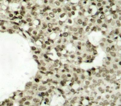 STAT1 (pSer727) Antibody gallery image 2
