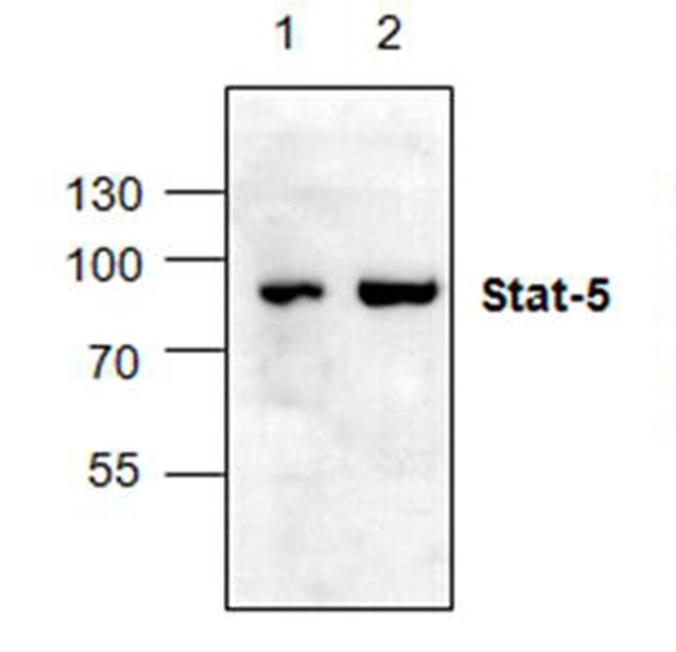 STAT5 Antibody gallery image 1