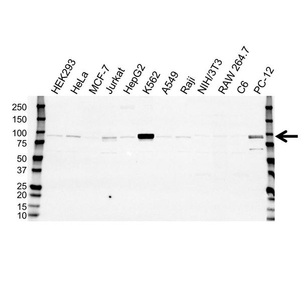 STAT5B Antibody (PrecisionAb<sup>TM</sup> Antibody) gallery image 1