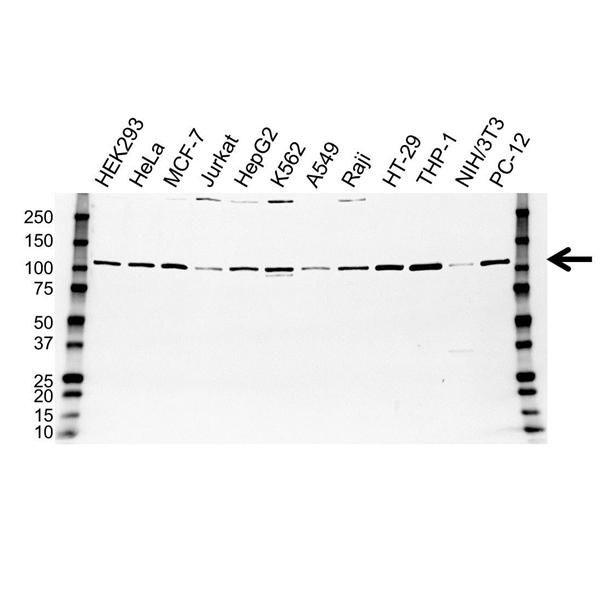 STAT6 Antibody (PrecisionAb<sup>TM</sup> Antibody) gallery image 1
