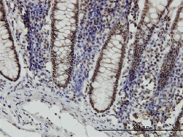 STAT6 Antibody | 6C10 gallery image 2