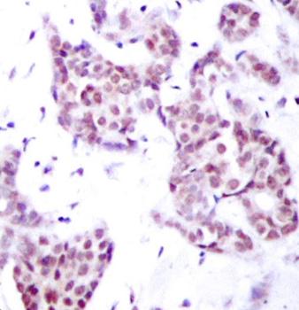 STAT6 (pTyr641) Antibody gallery image 2