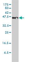 STEAP1 Antibody   4F6-1F3 gallery image 2