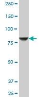 STIM1 Antibody | 5A2 gallery image 3