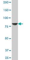STIM1 Antibody   5A2 gallery image 3