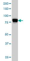 STIM1 Antibody   5A2 gallery image 4