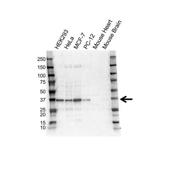 STUB1 Antibody (PrecisionAb<sup>TM</sup> Antibody) gallery image 1