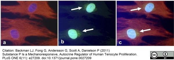 Substance P Antibody gallery image 6