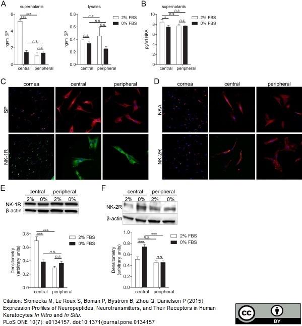 Substance P Antibody gallery image 4