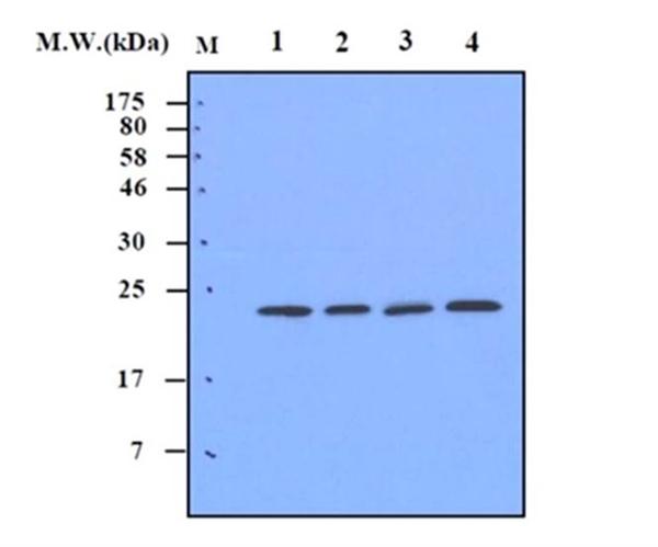 Superoxide Dismutase (MN) Antibody | 2A1 gallery image 1