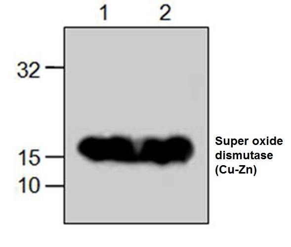 Superoxide Dismutase (Cu-Zn) Antibody gallery image 1
