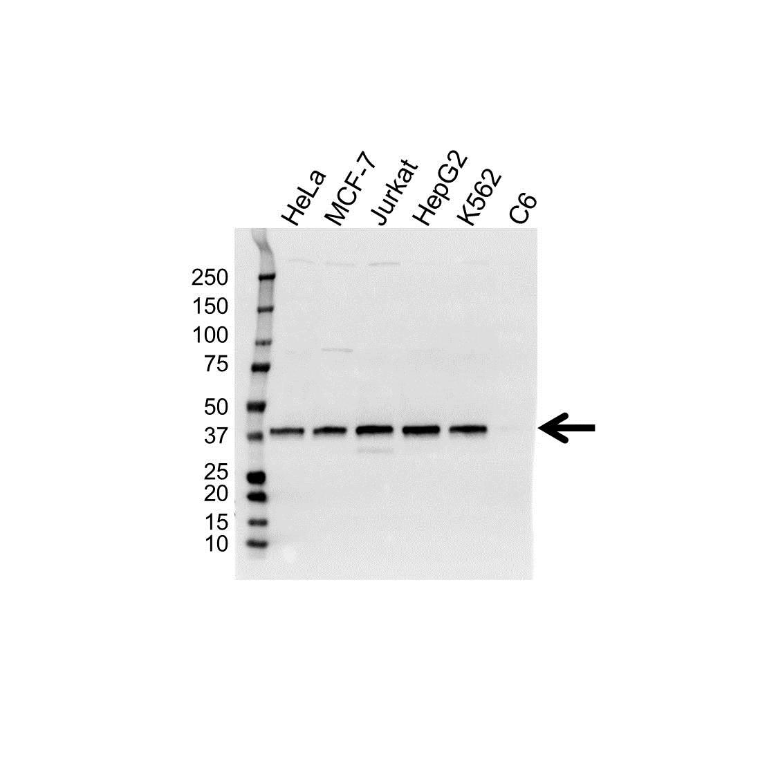 Survival Motor Neuron Protein Antibody (PrecisionAb<sup>TM</sup> Antibody) gallery image 1