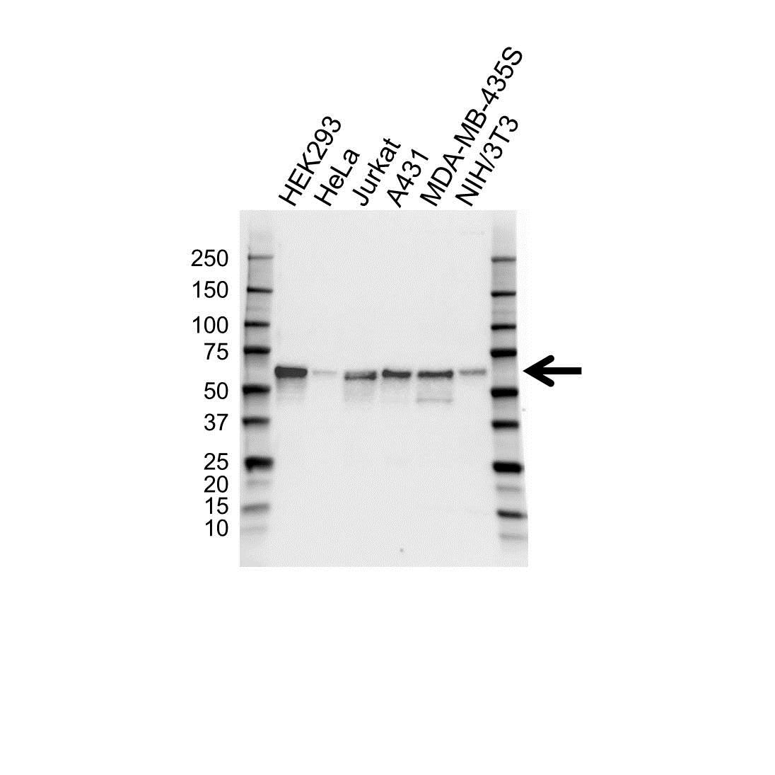 TAB1 Antibody (PrecisionAb<sup>TM</sup> Antibody) gallery image 1