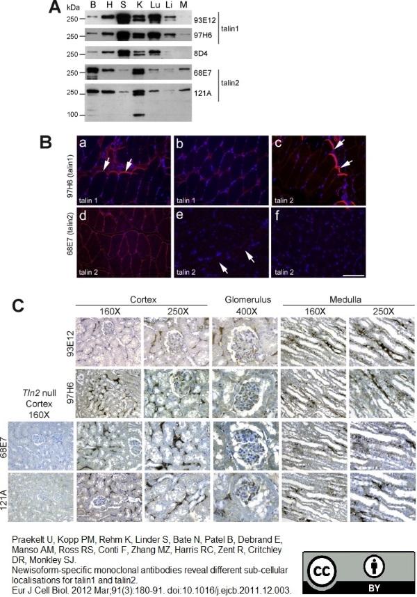 Talin-2 Antibody | 53.8 gallery image 5