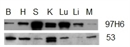 Talin-2 Antibody | 53.8 thumbnail image 2