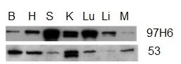 Talin-2 Antibody | 53.8 gallery image 2