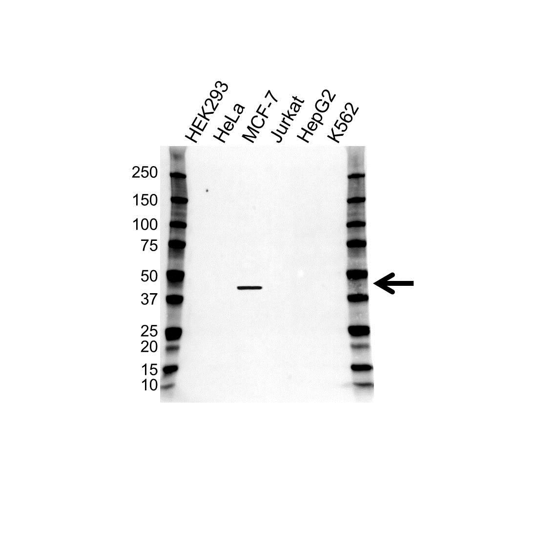 TBX1 Antibody (PrecisionAb<sup>TM</sup> Antibody) gallery image 1