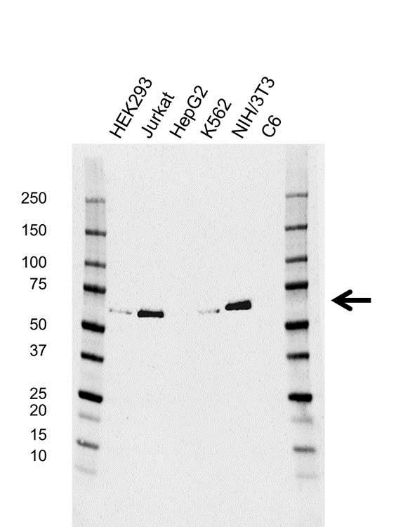 TCF4 Antibody (PrecisionAb<sup>TM</sup> Antibody) | AB01/4A12-6-6 gallery image 1