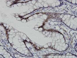 TCF4 Antibody | 3A4 gallery image 2