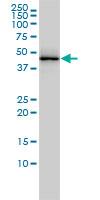 TDP43 Antibody   2E2-D3 gallery image 1