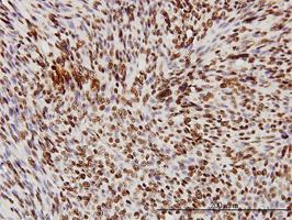 TDP43 Antibody   2E2-D3 gallery image 2