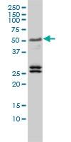 TFEB Antibody | 3E1-G6 gallery image 2
