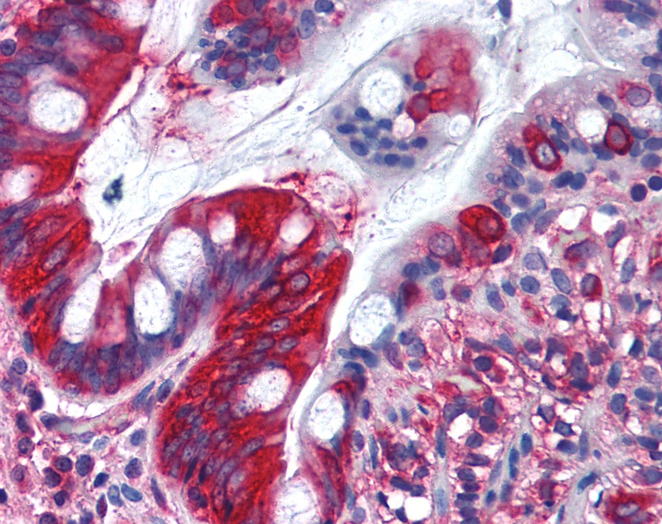 TFG Antibody gallery image 1