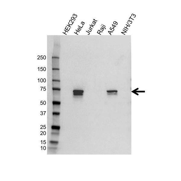 Tgfbi Antibody (PrecisionAb<sup>TM</sup> Antibody) gallery image 1