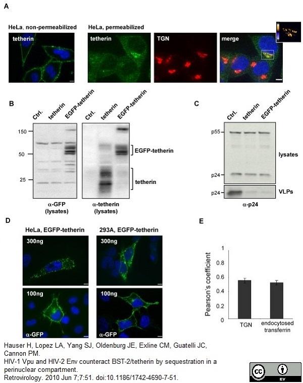 TGN46 Antibody gallery image 4