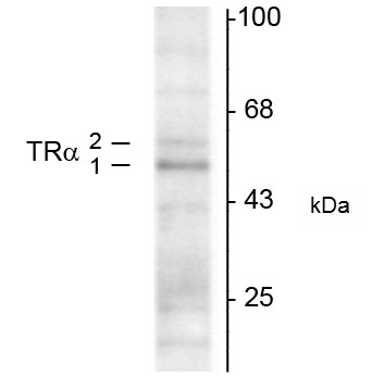 Thyroid Hormone Receptor Alpha 1/2 Antibody | 2103 gallery image 1