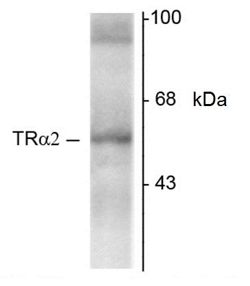 Thyroid Hormone Receptor Alpha 2 Antibody   1330 gallery image 2