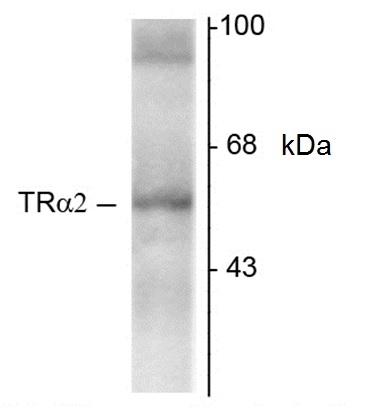 Thyroid Hormone Receptor Alpha 2 Antibody | 1330 gallery image 1