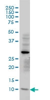 TIMM8A Antibody | 2F11 gallery image 1