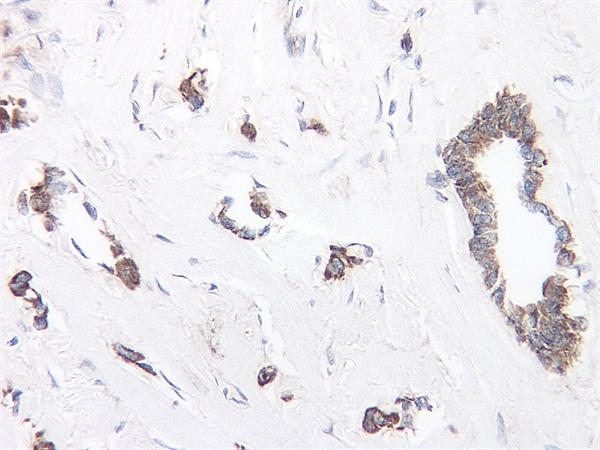 TIMP-1 Antibody gallery image 1