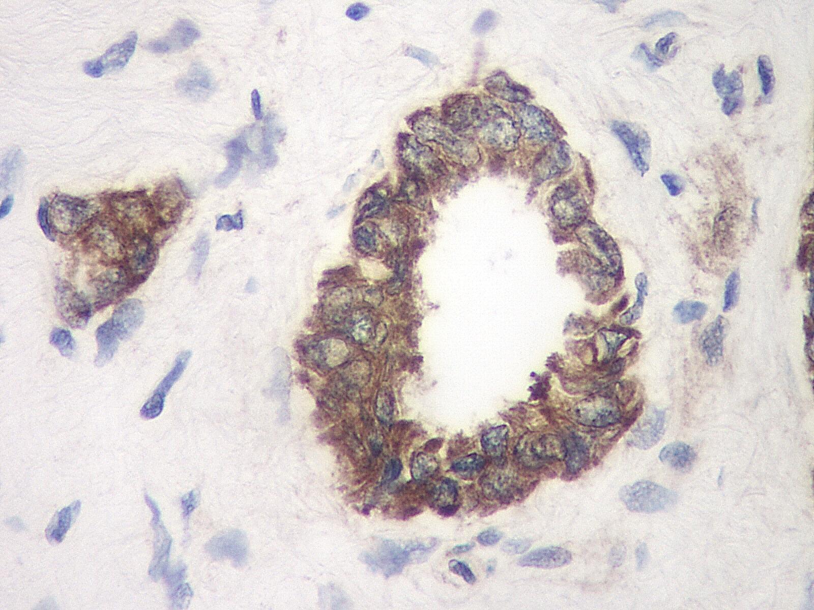 TIMP-1 Antibody gallery image 2