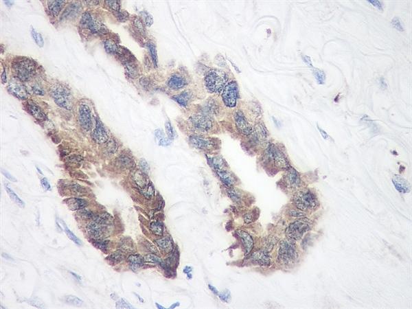 TIMP-1 Antibody gallery image 3