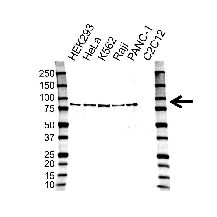 Tissue Transglutaminase Antibody (PrecisionAb<sup>TM</sup> Antibody) gallery image 1