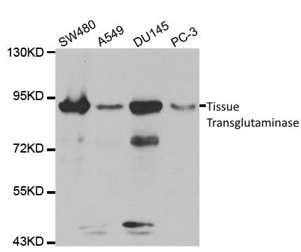 Tissue Transglutaminase Antibody gallery image 1