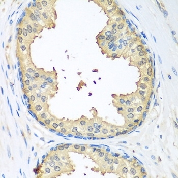Tissue Transglutaminase Antibody gallery image 2