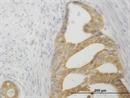 TNFRSF14 Antibody | 2G6-2C7 thumbnail image 1