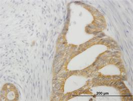 TNFRSF14 Antibody | 2G6-2C7 gallery image 1