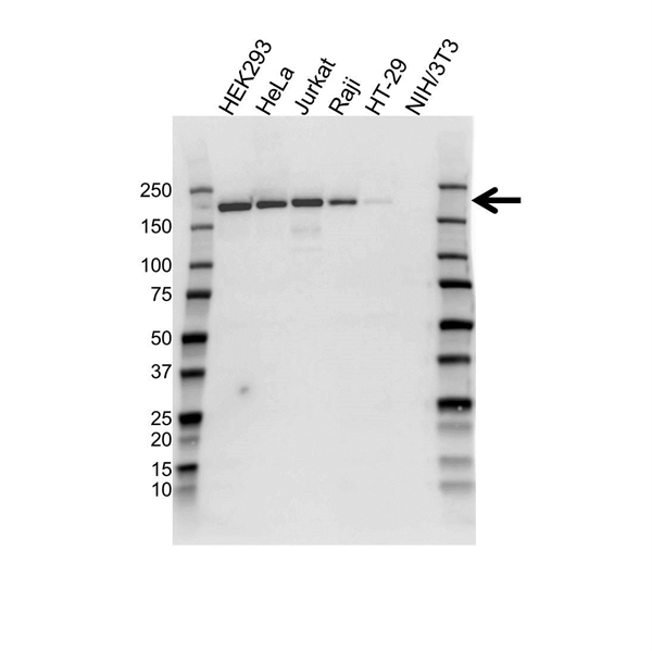 Topoisomerase II Alpha Antibody (PrecisionAb<sup>TM</sup> Antibody) gallery image 1