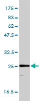 TPI1 Antibody | 1D10-2E2 gallery image 1