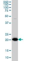 TPT1 Antibody | 3C7 gallery image 2