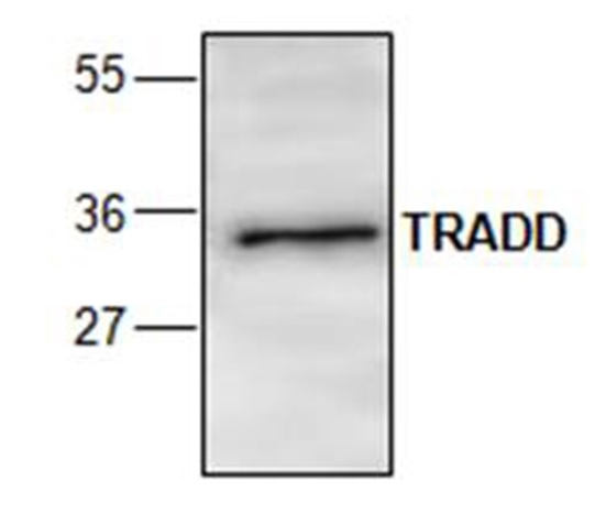 TRADD Antibody gallery image 1