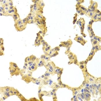 TRAF2 Antibody gallery image 2