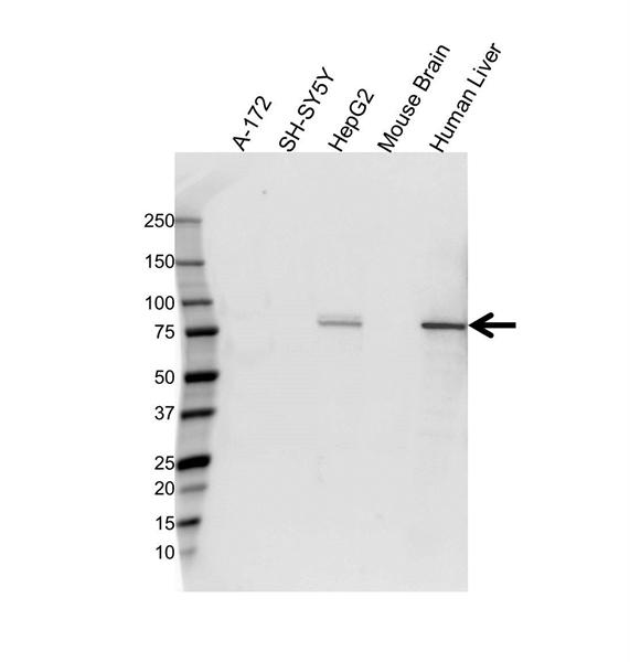 Transferrin Antibody (PrecisionAb<sup>TM</sup> Antibody) gallery image 1