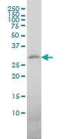 Trem-1 Antibody | 2E2 gallery image 1